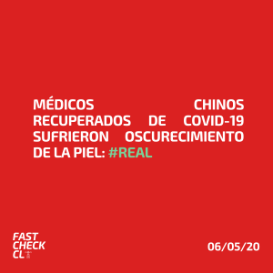 Médicos chinos recuperados de Covid-19 sufrieron oscurecimiento de la piel: #Real