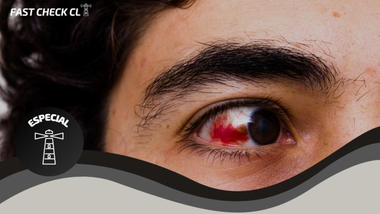 Read more about the article Programa Integral de Reparación Ocular: las falencias del programa de Salud para atender víctimas de estallidos oculares
